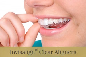 Invisalign SEO To Increase Your Dental Practice's Revenue